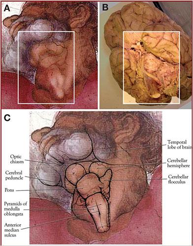 Michelangelod and brain stem